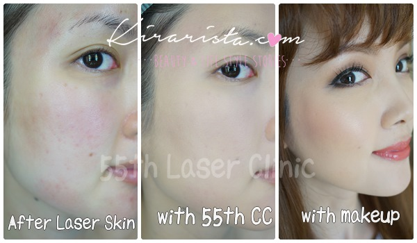 55 laser clinic_CC cream_3