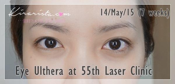 Ulthera_eye_55thLaser_10