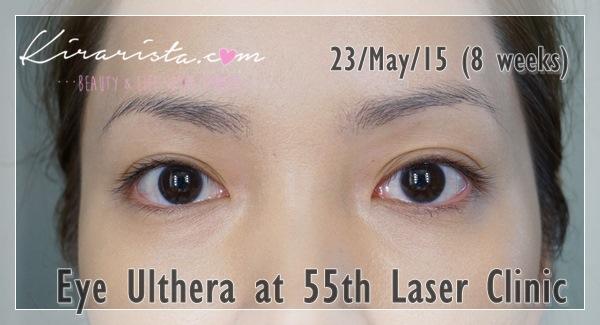 Ulthera_eye_55thLaser_11