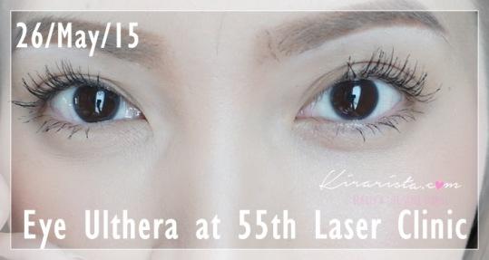Ulthera_eye_55thLaser_14