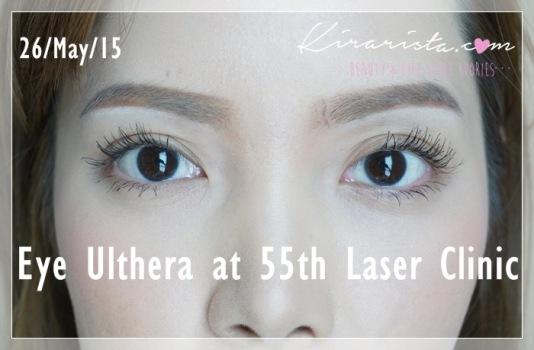 Ulthera_eye_55thLaser_15
