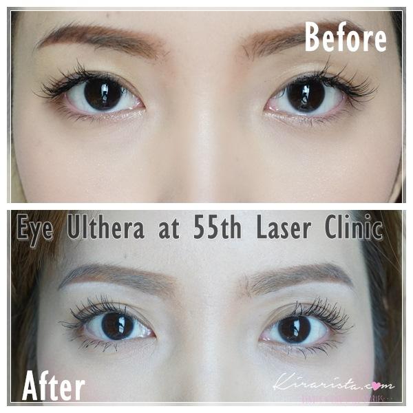 Ulthera_eye_55thLaser_3
